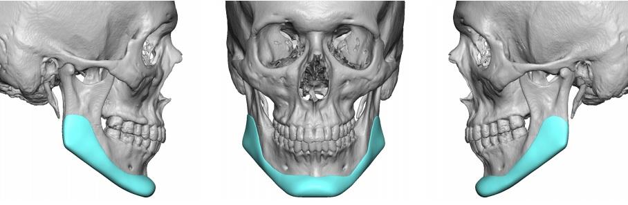 Aumento de la mandíbula en Carolina del Norte