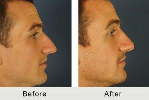 Carolina Facial Plastics Man Nose Job