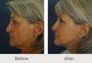 Chin Implant Charlotte Before and After