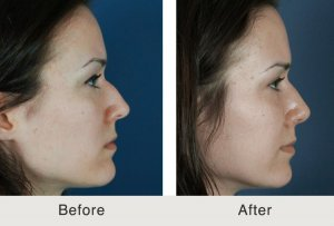 Surgical Rhinoplasty in Charlotte, NC
