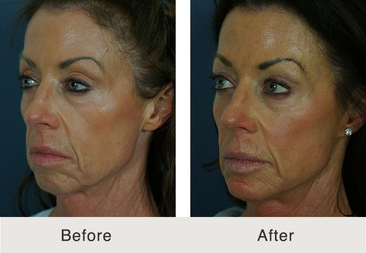 Before & After Chin Implant