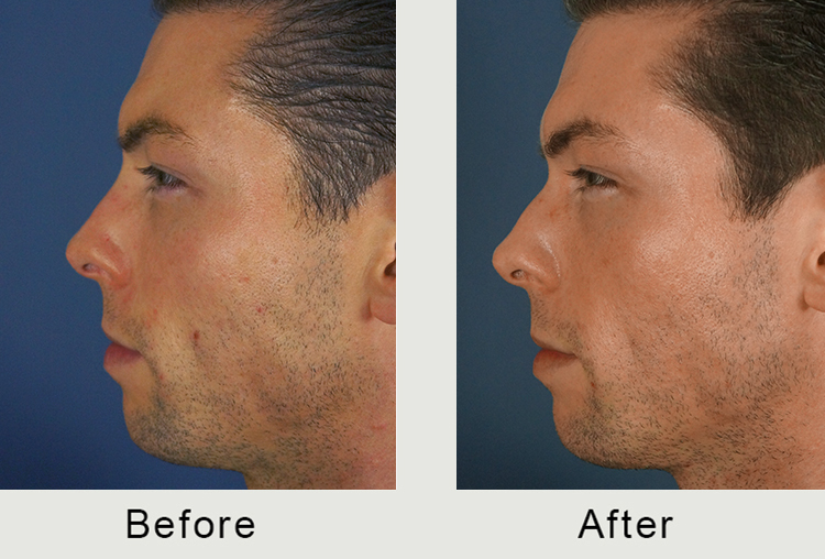North Carolina Liquid Rhinoplasy Surgeon