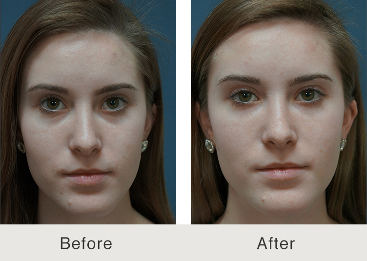 Before and After Facial Fillers