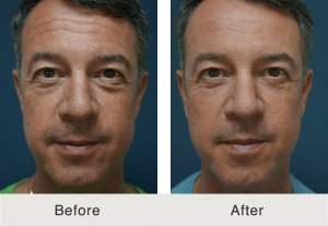 North Carolina Male Cosmetic Surgery