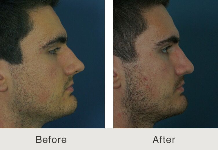 North Carolina Masculine Nose Job