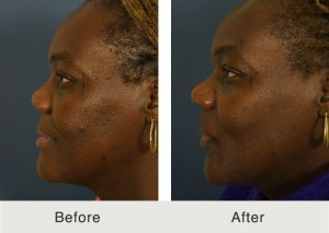 Rhinoplasty Gallery Charlotte | Carolina Facial Plastics