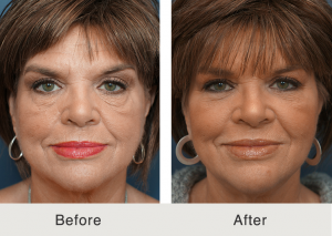 Charlotte-Lower-eyelid-lift-and-cheek-fat-grafting-1