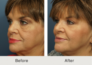 Lower eyelid lift and cheek fat grafting 2
