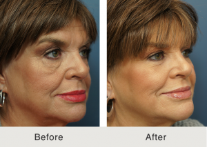 Lower eyelid lift and cheek fat grafting 4