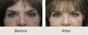 Lower eyelid lift and cheek fat grafting 5