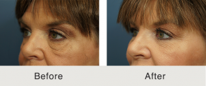 Lower eyelid lift and cheek fat grafting 6