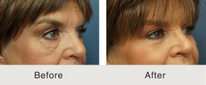 Lower eyelid lift and cheek fat grafting 7