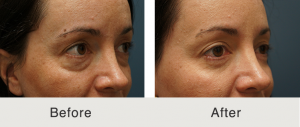 Lower eyelid lift 2