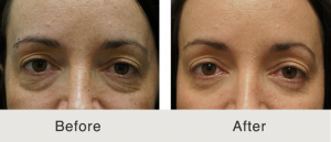 Lower eyelid lift 4