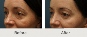 Lower eyelid lift 5