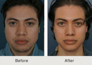 Latino rhinoplasty specialist 4