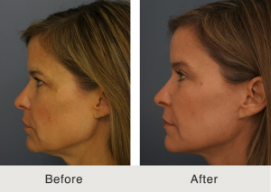 Natural facelift 1