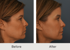 Natural facelift 3
