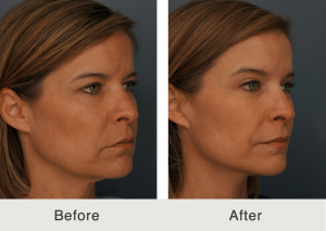 Natural facelift 4