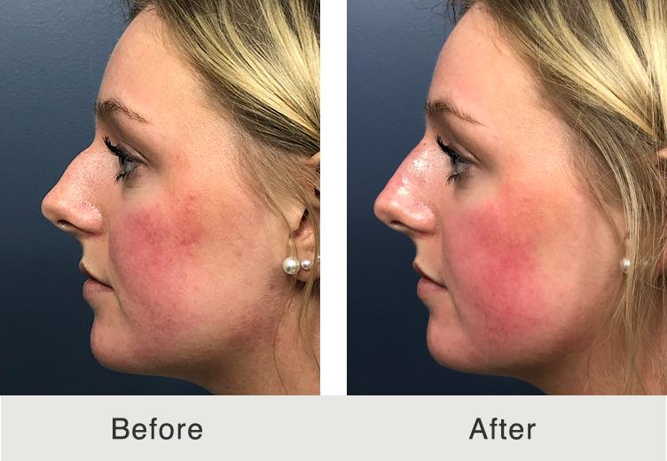 Non Surgical Rhinoplasty To Remove Nose Bump Carolina Facial