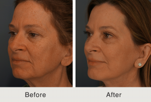 Facelift Chin Implant Chemical Peel and Fat Grafting