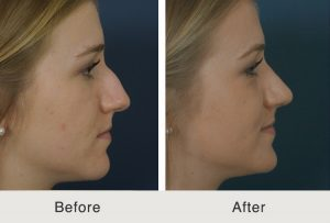 Before and after image of a rhinoplasty procedure done in our Charlotte, NC clinic