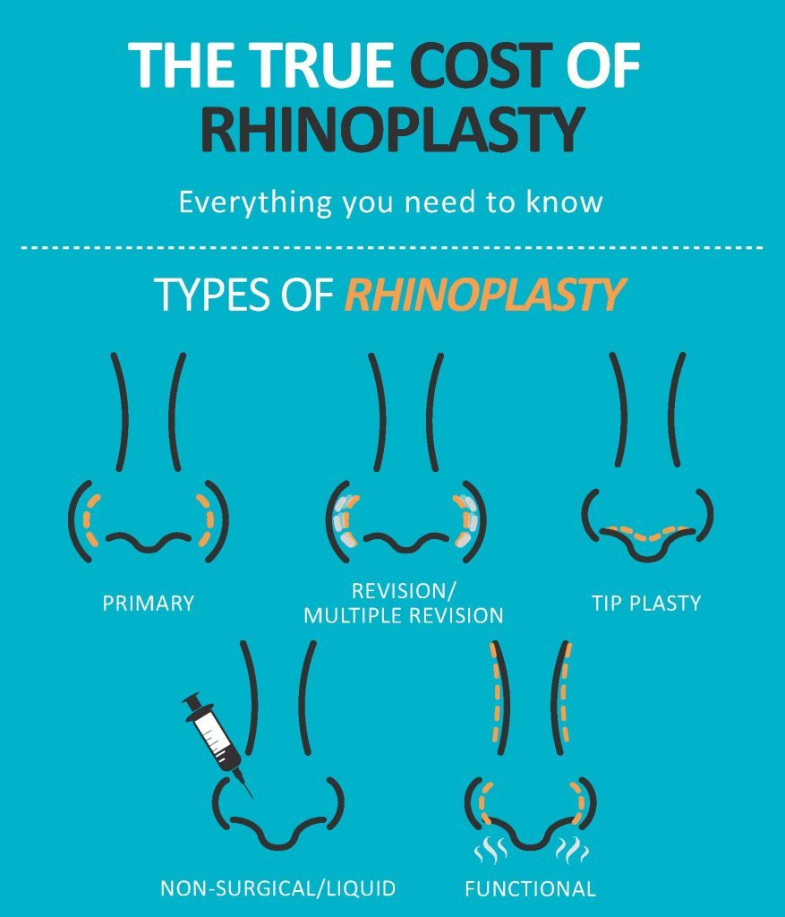 The true cost of rhinoplasty infographic for Dr. Kulbersh's Charlotte, NC office