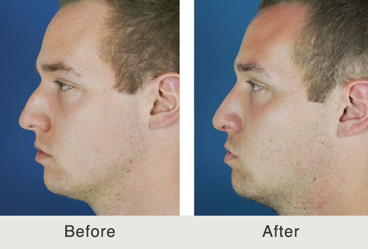 Rhinoplasty - Nose Jobs In Charlotte, NC | Carolina Facial Plastics