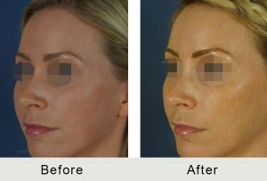 A photo of a woman in her before and after results after a liquid rhinoplasty in Carolina Facial Plastics, located in Charlotte, NC