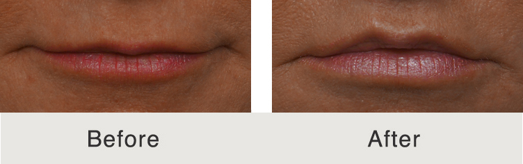 Before and after image of a lip lift performed by Dr. Kulbersh of Carolina Facial Plastic Surgery.
