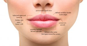 Lip filler infographic showing treatment areas for injectable filler