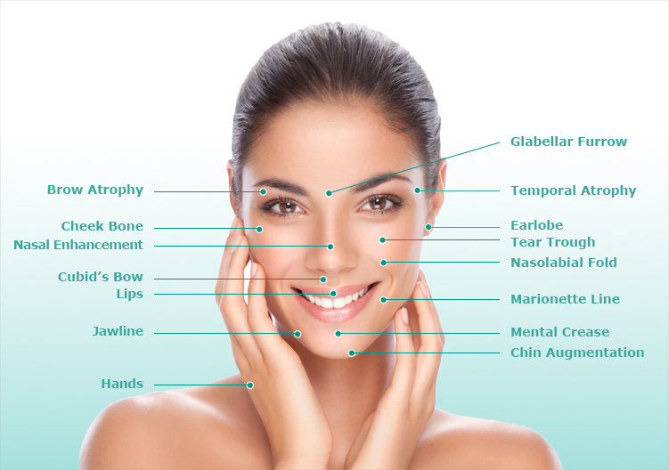 Injectable fillers diagram in Charlotte, NC