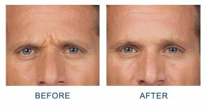 dysport wrinkle treatment in charlotte, nc