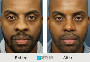 rhinoplasty male patient in charlotte, nc