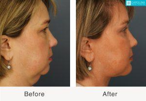 eliminación de grasa bucal para una cara más delgada en charlotte, Carolina del Norte