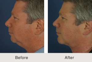 chin implant patient in charlotte, nc