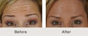 tratamiento de arrugas de la frente de botox en charlotte, Carolina del Norte