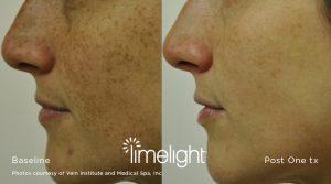 Limelight IPL Photofacial Laser Dermatology in Charlotte, NC
