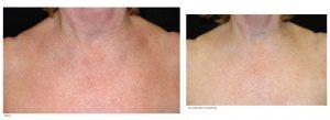 Laser Dermatology IPL Facial Charlotte, NC