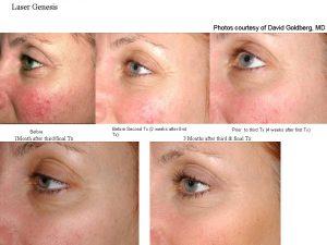 Laser Genesis Before and After Progress in Charlotte, NC