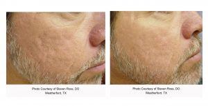 Laser Genesis Before and After in Charlotte, NC