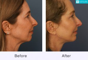 chin augmentation before and after in charlotte, nc