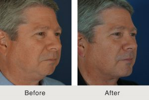 male chin implant results in charlotte, nc