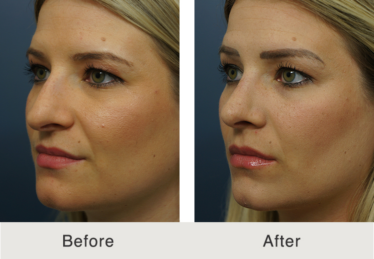 wide nose rhinoplasty treatment results in charlotte, nc