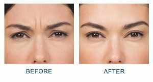 botox injections before and after in charlotte, nc