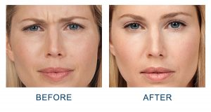 smooth out fine lines and wrinkles with neuromodulators in Charlotte, NC