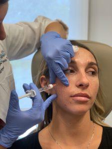 inyecciones de lifting facial líquido en charlotte, Carolina del Norte