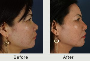 non-surgical rhinoplasty before and after in charlotte, nc