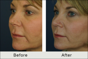 revision rhinoplasty before and after results in charlotte, NC