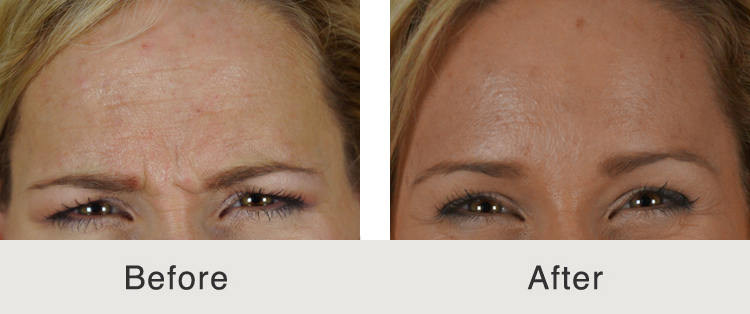 botox wrinkle treatment in charlotte, nc